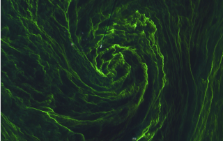 eye_of_an_algal_storm_large_sentinel2